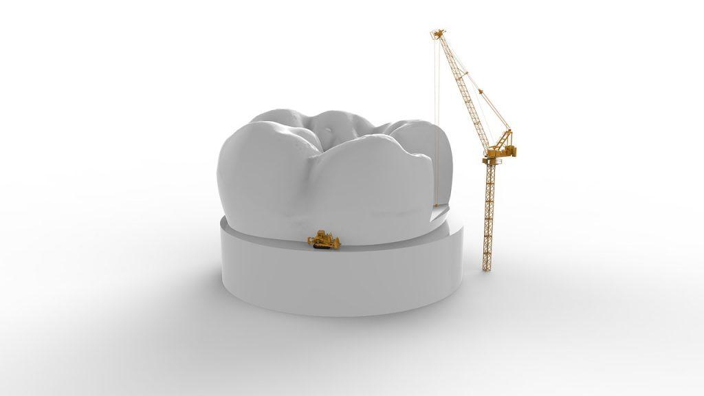 Le traitement de la carie dentaire ✅ n'attendez surtout pas ! Cela pourrait vous coûter cher !