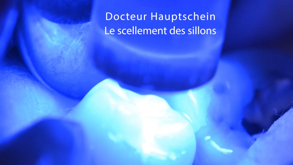 Le scellement des sillons dentaires. ✅Une expertise du Docteur Hauptschein de Champigny sur-Marne