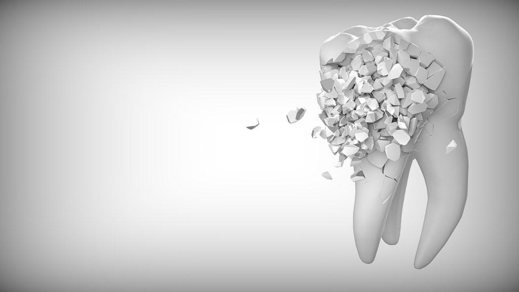 Tout ce que vous devez savoir sur les couronnes dentaires !
