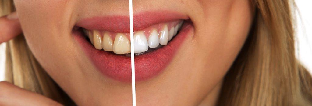 ✅10 conseils et astuces pour avoir des dents blanches ✅