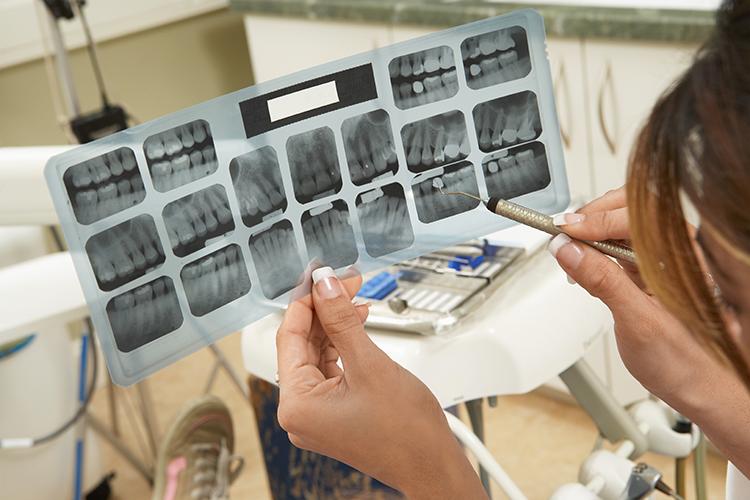 Santé bucco-dentaire et cancer de la prostate