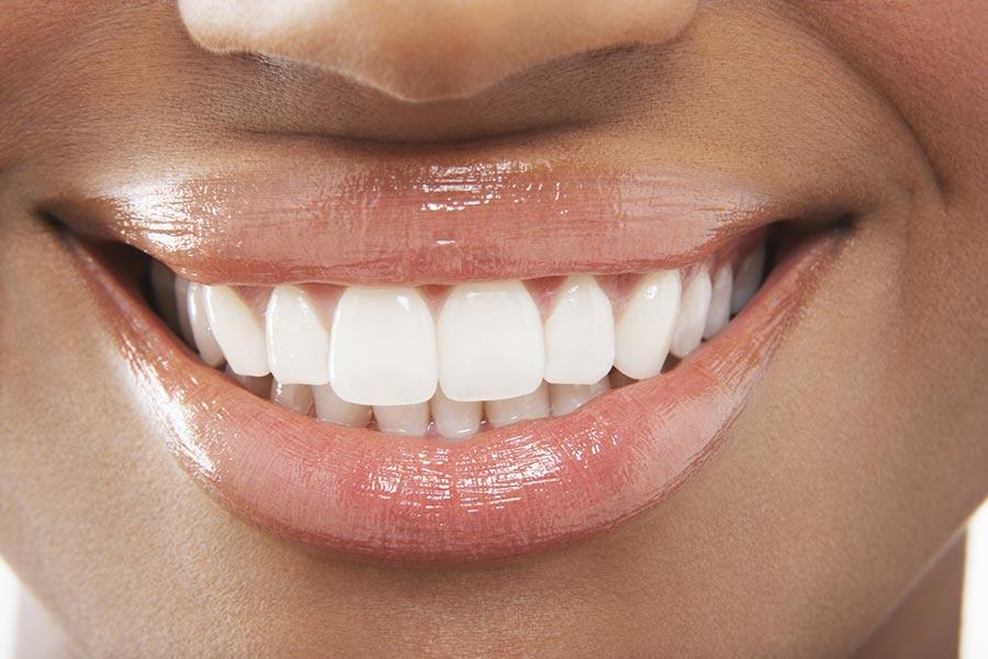 Remplacer une dent manquante, fausse dent, dent provisoire, bridge et implant dentaire